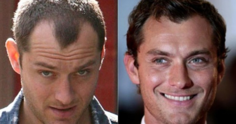 16 celebrities with hair transplant (photos with the result)