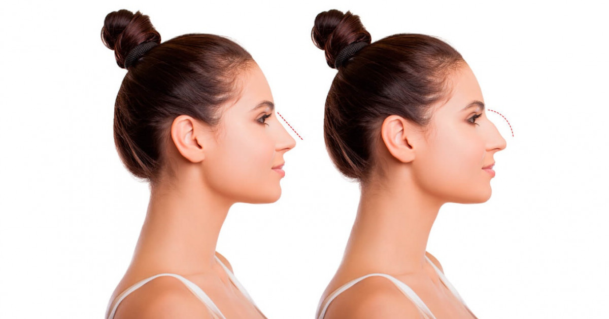 Rhinoplasty: why perform this operation, risks and postoperative