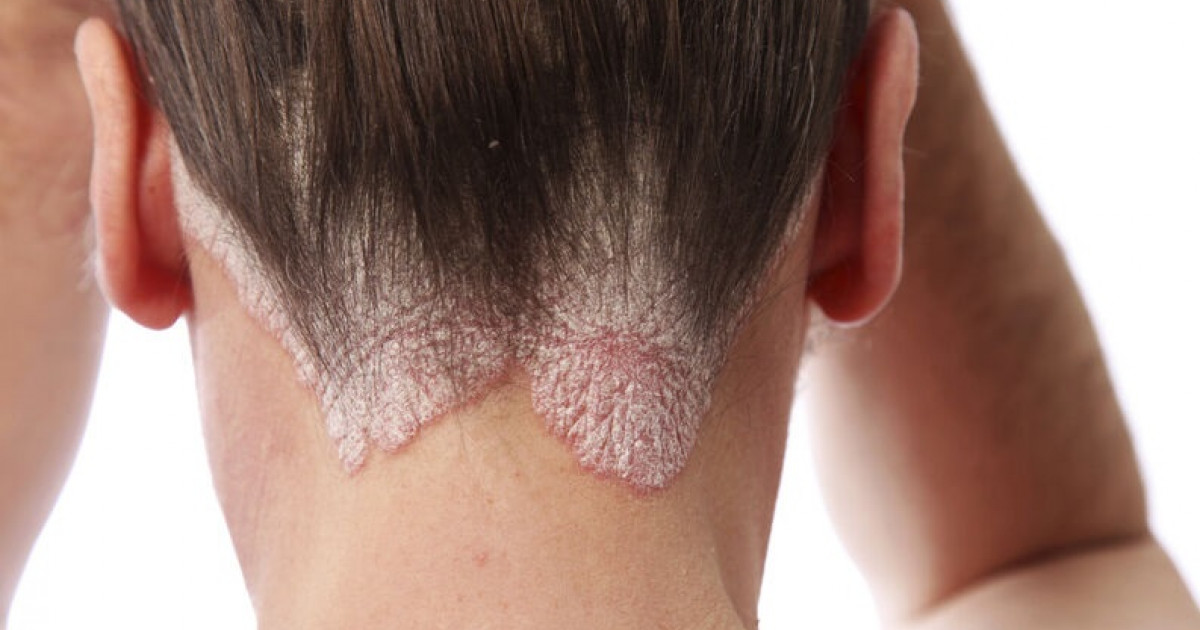 The 6 differences between atopic and seborrheic dermatitis