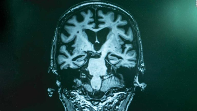 Within a year, Great Britain will be able to offer a test to diagnose dementia in minutes.